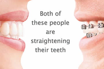 Invisalign Vs. Traditional Braces